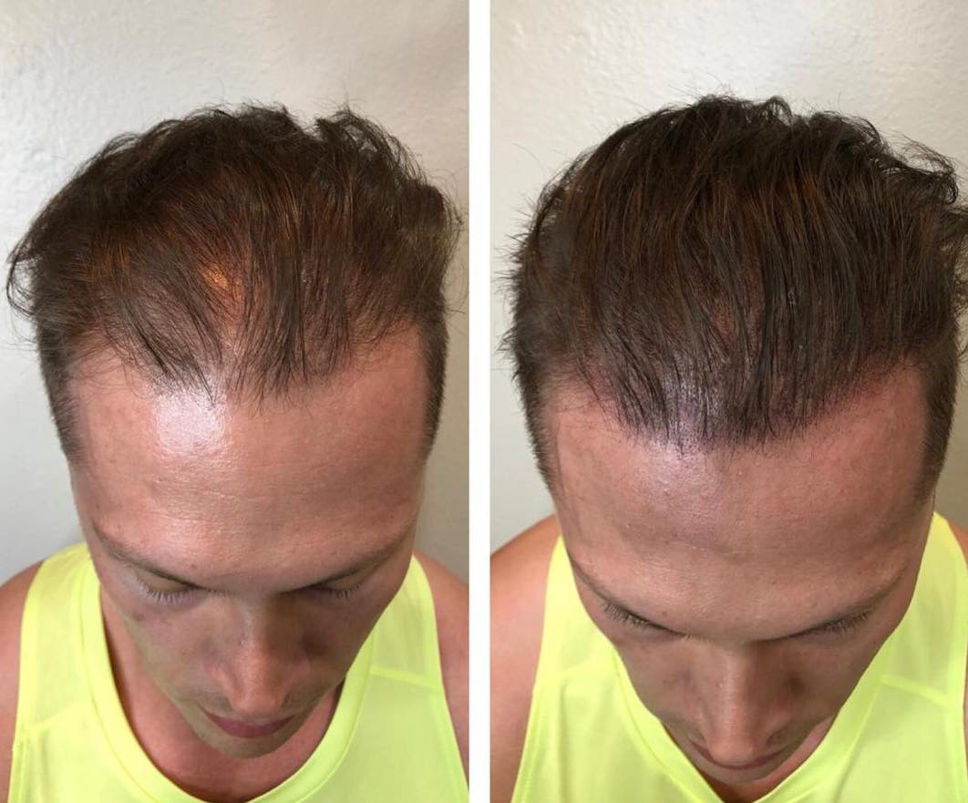 Scalp Micropigmentation Las Vegas | Hides Thinning Hair ...